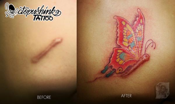 Grandes Ideas para Ocultar las Cicatrices con Tatuajes